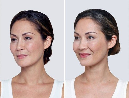 Filler Before and After Photo Innovative Aesthetics Medical Spa and Laser Center