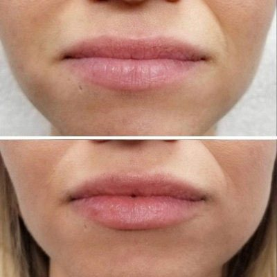 Fillers Before and After Innovative Aesthetics Medical Spa and Laser Center