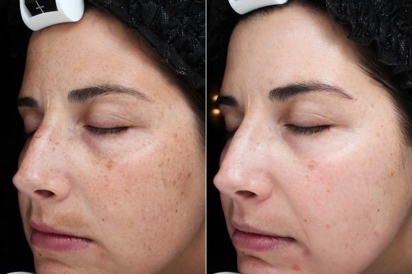 chemical-peel-before-and-after_Innovative-Aesthetics-Spa-Laser-Center-Cedar-Rapids