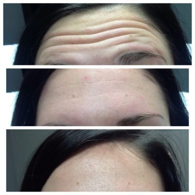 Forehead-2nd-Before-After_Innovative-Aesthetics-Spa-Laser-Center-Cedar-Rapids
