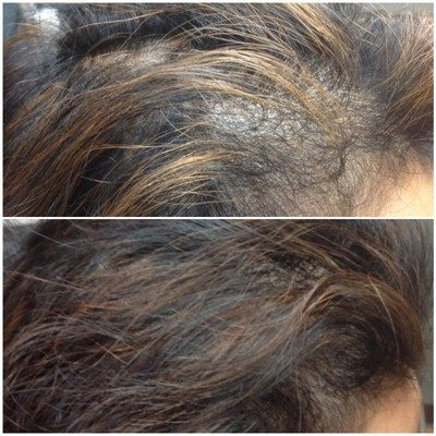 Hair Growth Treatment Before and After Innovative Aesthetics Medical Spa and Laser Center