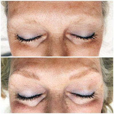 Microblading-Skin-Treatment_Innovative-Aesthetics-Spa-Laser-Center-Cedar-Rapids