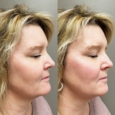 Restylane Lyft Before and After Photo Innovative Aesthetics Medical Spa and Laser Center